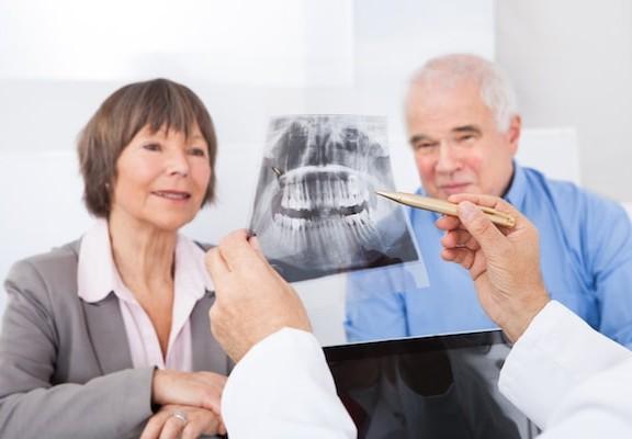 Elderly Dental Health Problems
