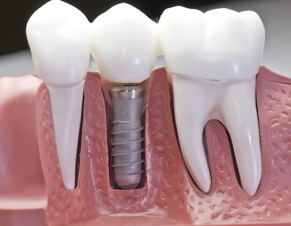 Risk of dental implants