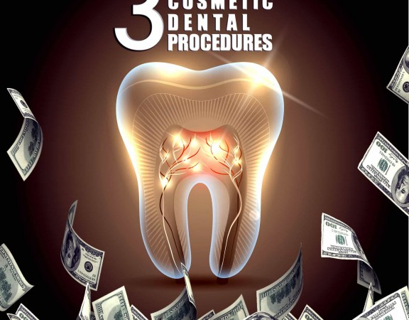 3 Costly Cosmetic Dental Work