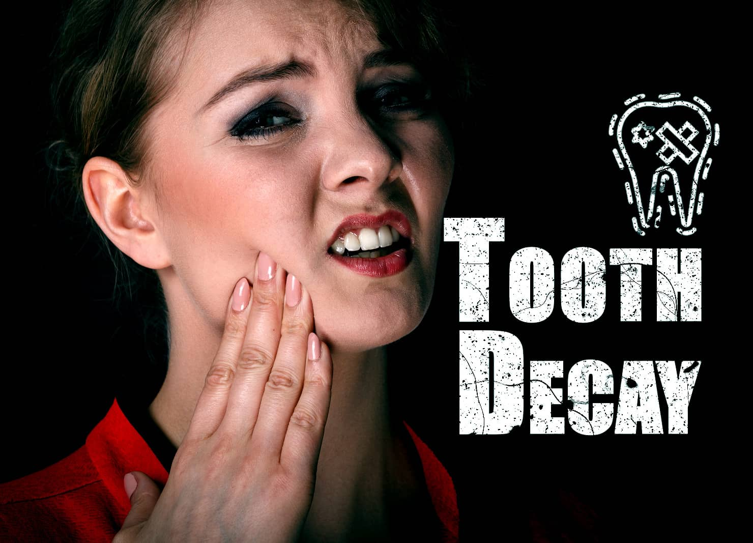 What is Tooth Decay