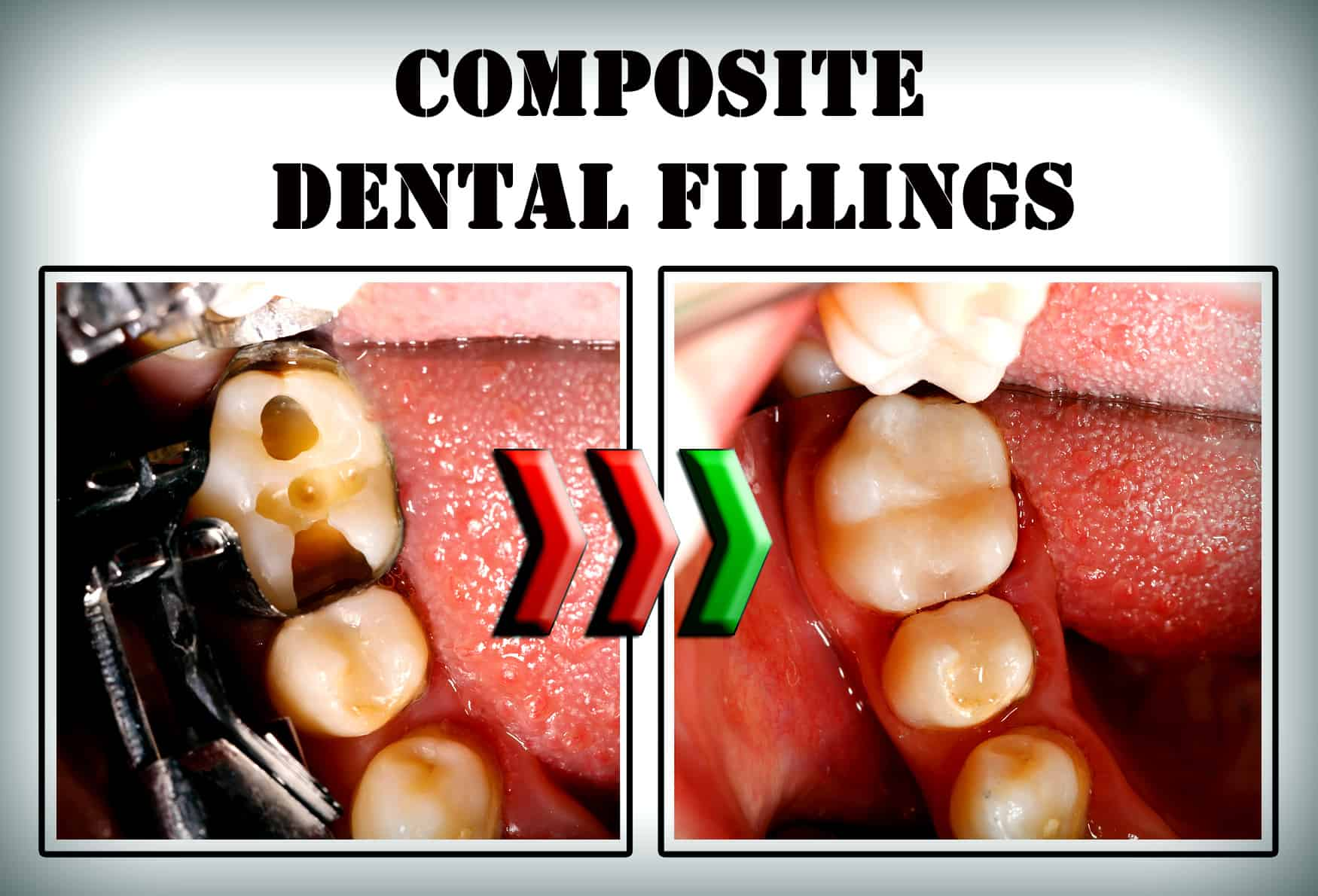 Benefits of Composite Fillings