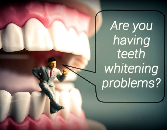 Issues with Whitening Teeth