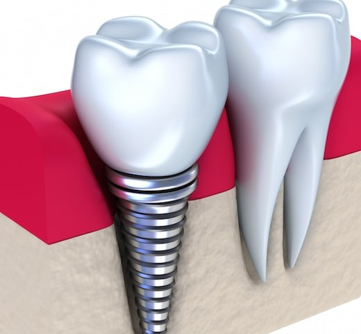 Dental Implant Failure Solution