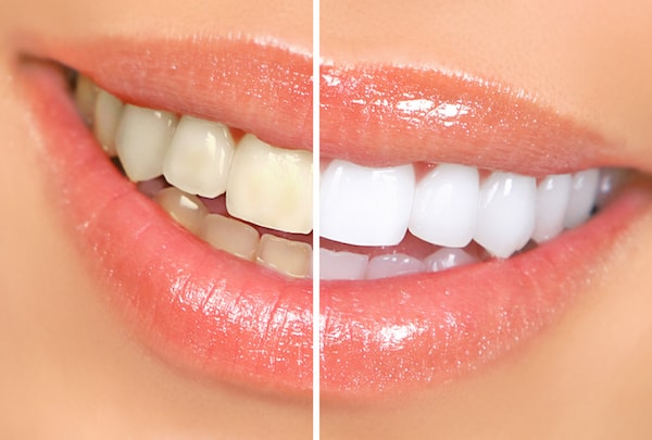 Sensitivity after teeth whitening