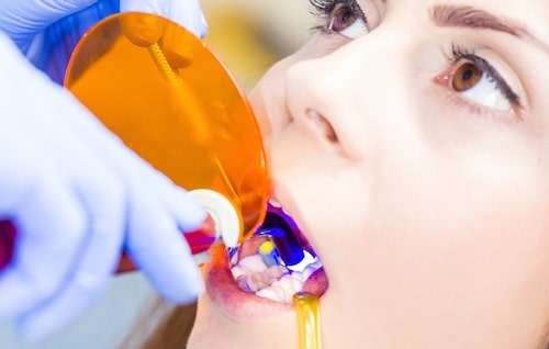 Functional and aesthetic cosmetic dentistry