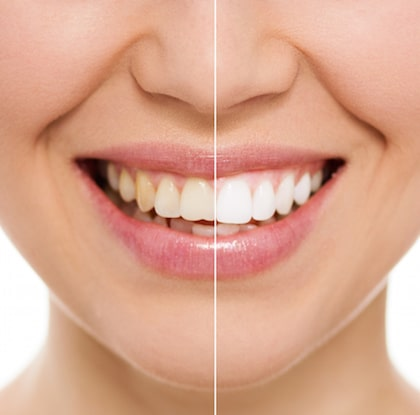 Teeth Whitening How its Performed