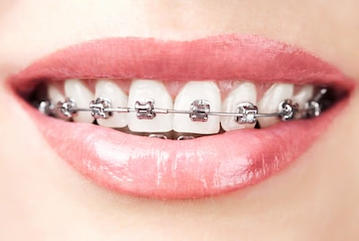Solution for Overlapping Teeth