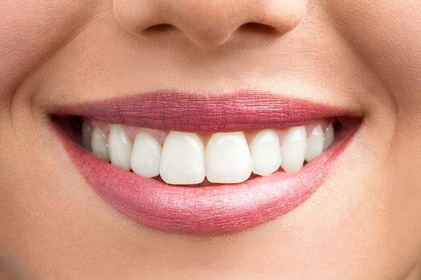 How to Fix Teeth