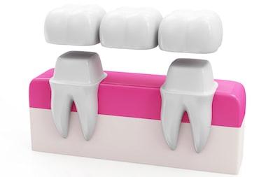 Reasons for dental bridges