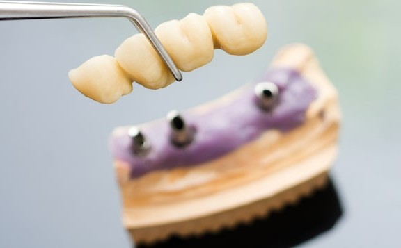 Reason for Dental Bridge