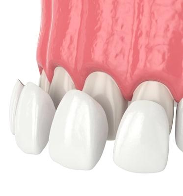 Creation of dental veneers